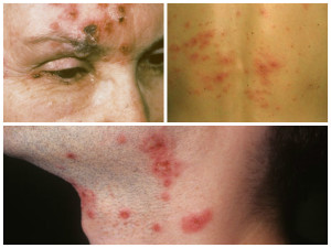 Shingles virus showing treatment and symptoms.