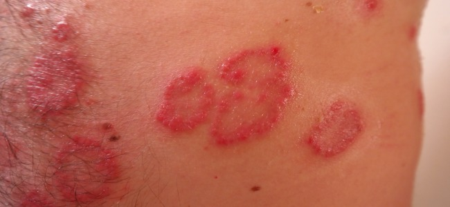 How To Cure Shingles All Info On Shingles Herpes You Need